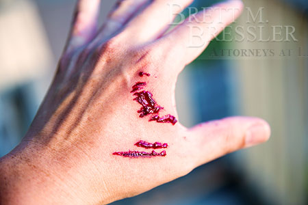 Orlando-Dog-Bite-Personal-Injury-Attorney-hand-injury